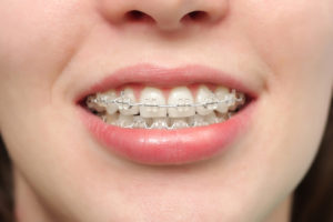 Ceramic Braces - Kids Braces in Burke, Virginia