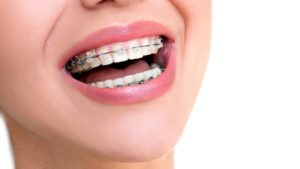 Damon Braces - Dale City Orthodontics