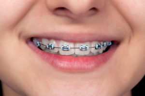 Metal Braces - Orthodontists in Quantico