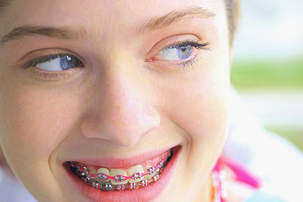 Orthodontic Care for Adults - How to Pay for Braces