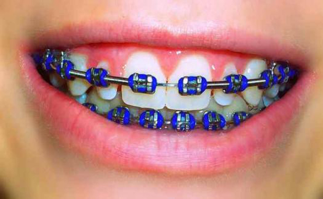 What Color Braces Can I Get?